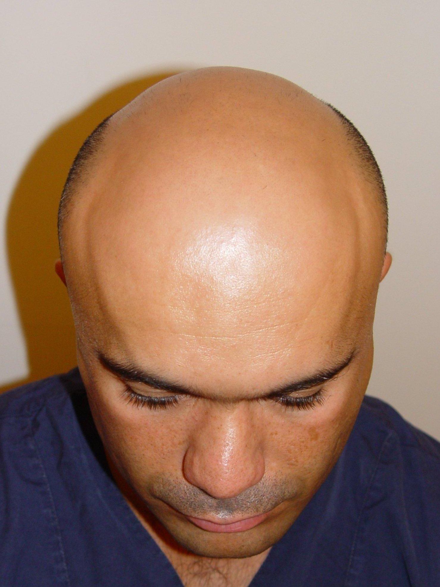 haartransplantation bei glatzen haarverpflanzung